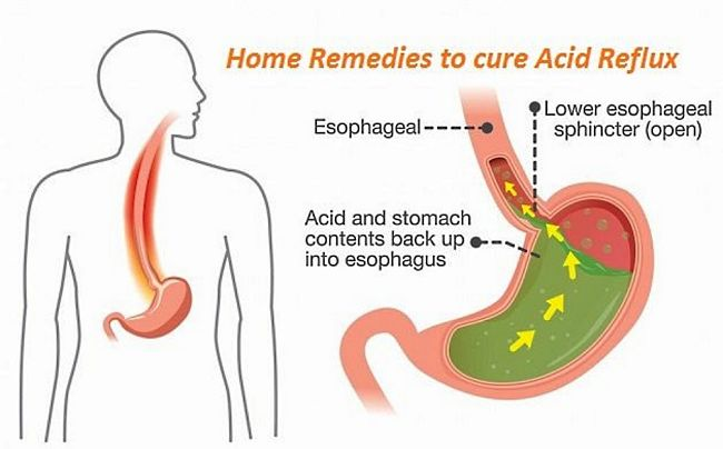 Home remedies can be very effective for many people