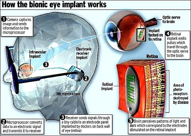 The Epiretinal Approach for developing the bionic eye