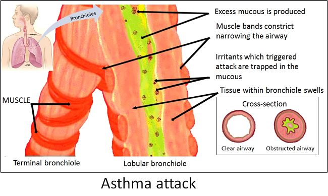 How asthma affects breathing