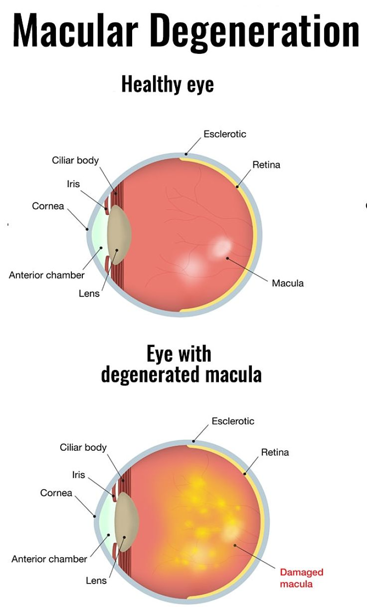 Description of Macular Degeneration