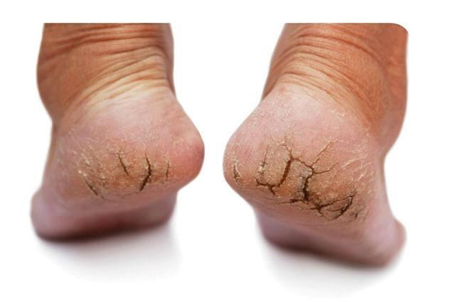 Badly cracked heels require urgent and thorough treatment - especially to remove the build up of dead skin