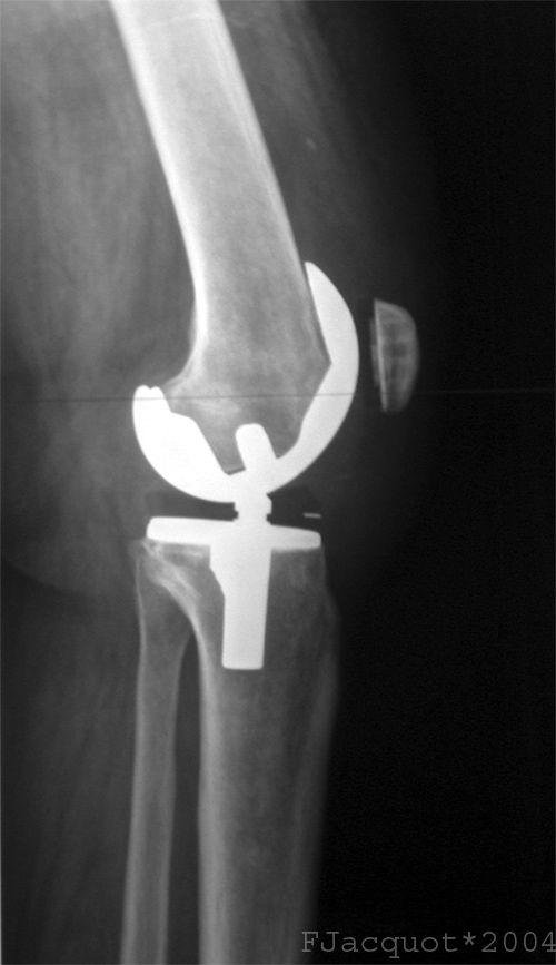 Lateral view of a total knee prosthesis taken from a radiograph