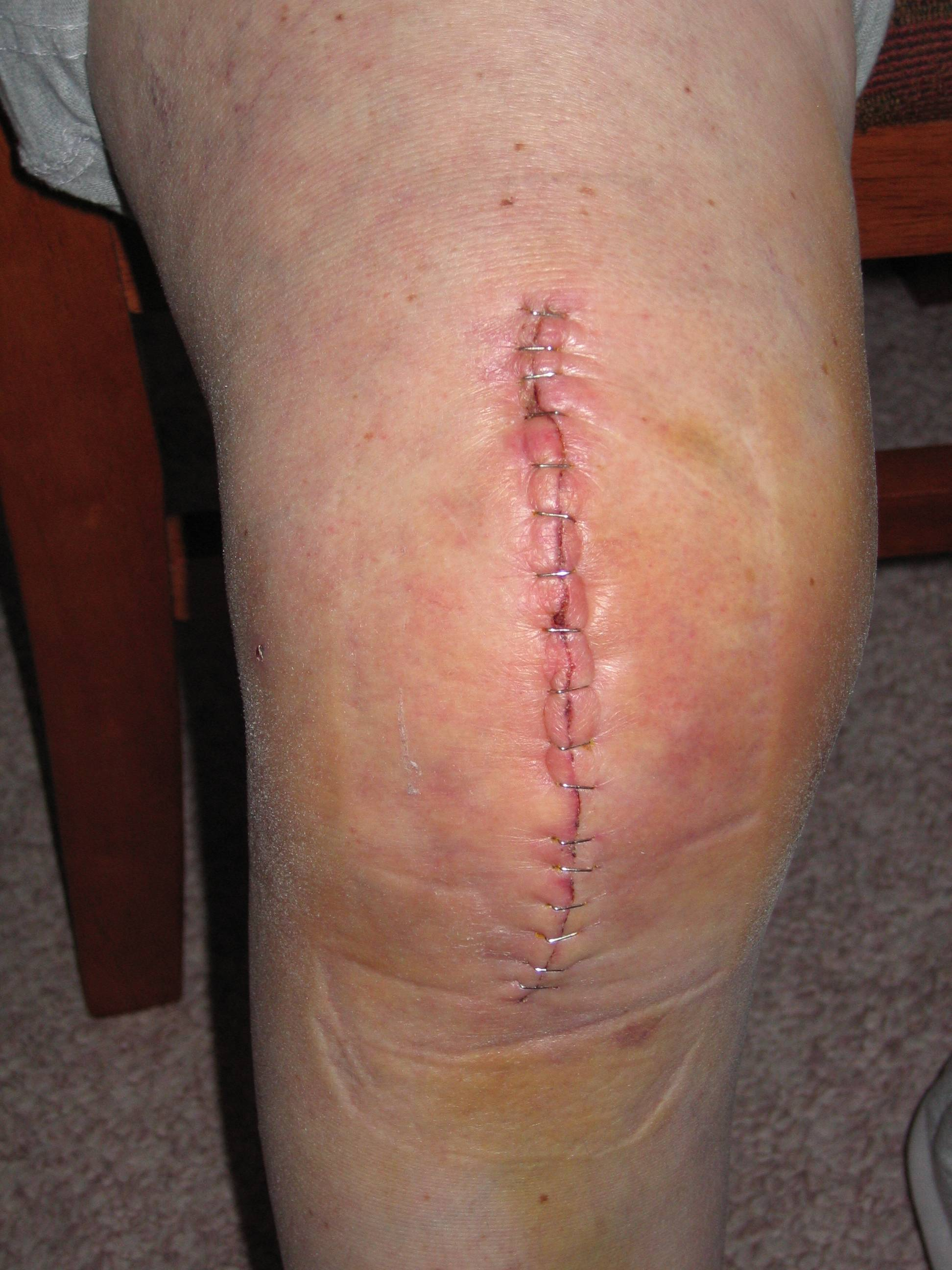Knee Replacement wound close by staples