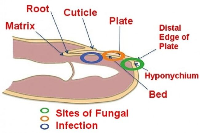 Major Sites of Fungal Infection and Types
