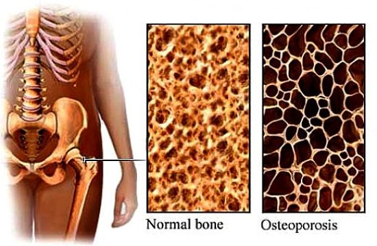 What is osteoporosis - find out more here