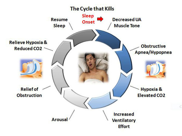 The sleep apnea cycle