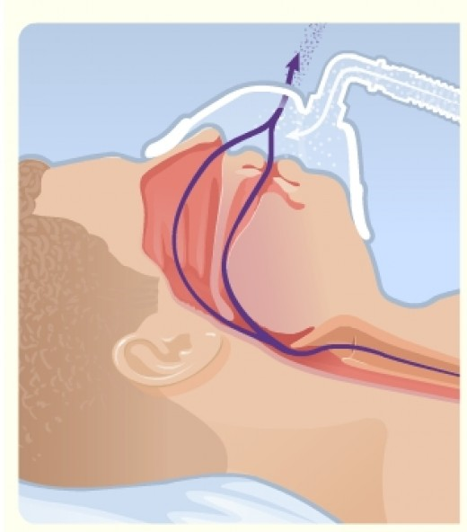 Airway remains open when patient exhales as the positive pressure is maintained.